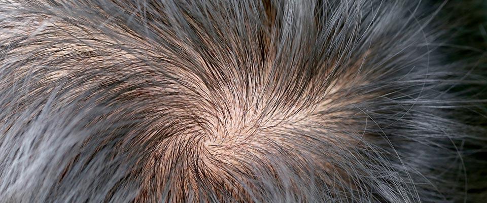 alopecia-caida-pelo